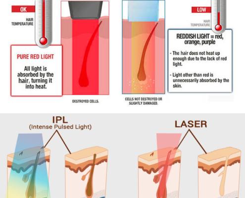 Ipl-vs-diode