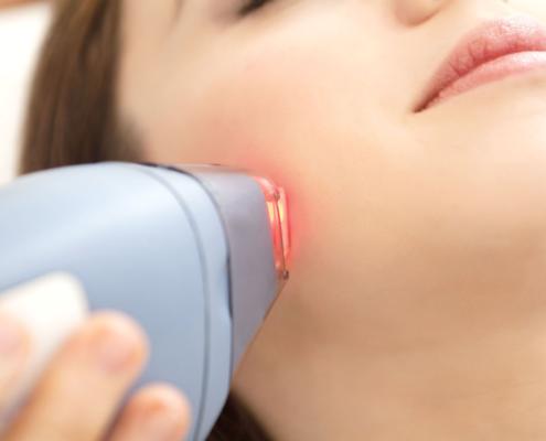 آیا استفاده از لیزر برای رفع موهای زائد صورت باعث ایجاد اسکار میشود؟