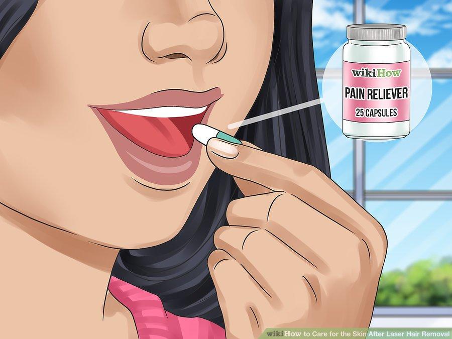 در صورت عدم پاسخگویی بسته یخ یا آلوئه ورا از داروهای ضد درد استفاده کنید