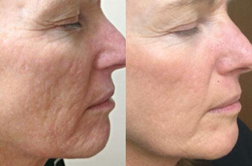 پیر شدن زودهنگام پوست