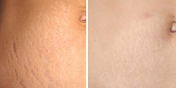 علائم کشش پوست