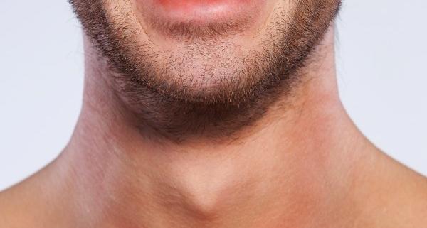 رفع موهای زائد برای آقایان