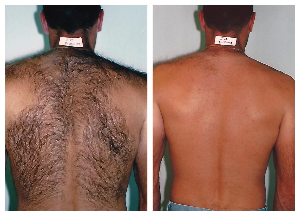 عمل لیزر موهای زائد چه کاری انجام میدهد: