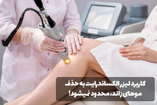 کاربرد لیزر الکساندرایت چیست؟
