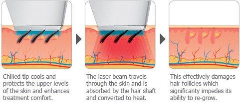 دستگاه لیزر چگونه باعث نابود شدن موهای زائد میشود؟