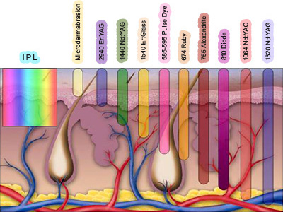 درمان موهای زائد با استفاده از لیزر دایود الکس