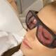 پوستهای حساس و استفاده از دستگاه لیزر برای رفع موهای زائد