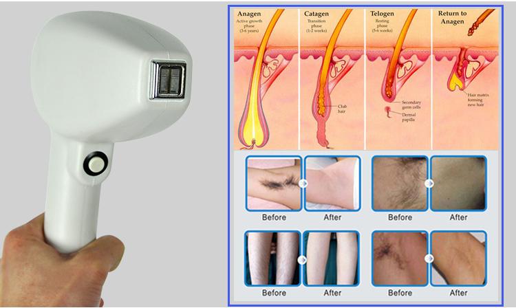 دستگاه لیزر nd yag