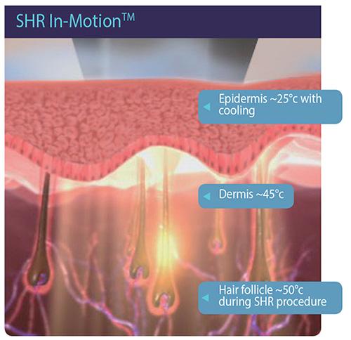 فناوری SHR توسط لیزر آلما