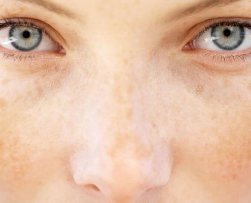 درمان لک با لیزر