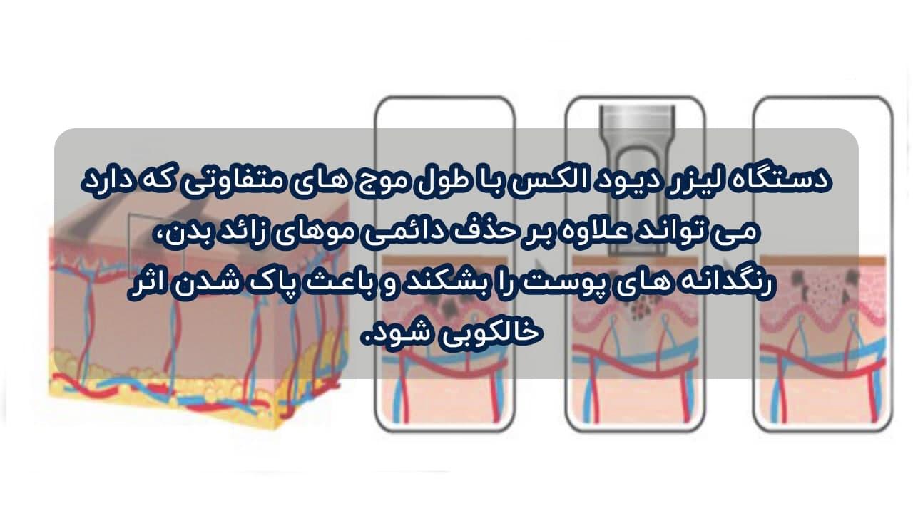 توانایی های بالای لیزر دایود الکس برای از بین بردن خالکوبی ها